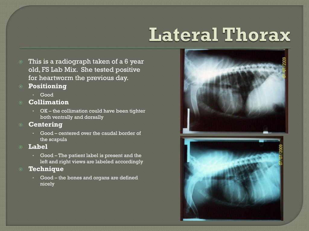 Lateral Thorax