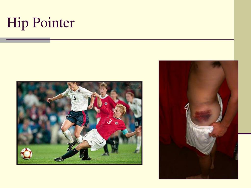 Hip Pointer