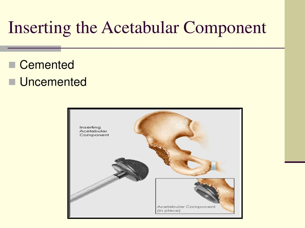 Inserting the Acetabular Component