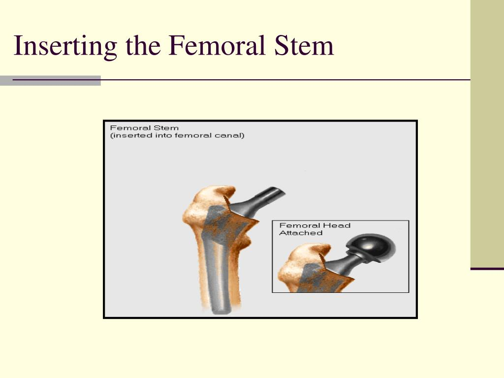Inserting the Femoral Stem