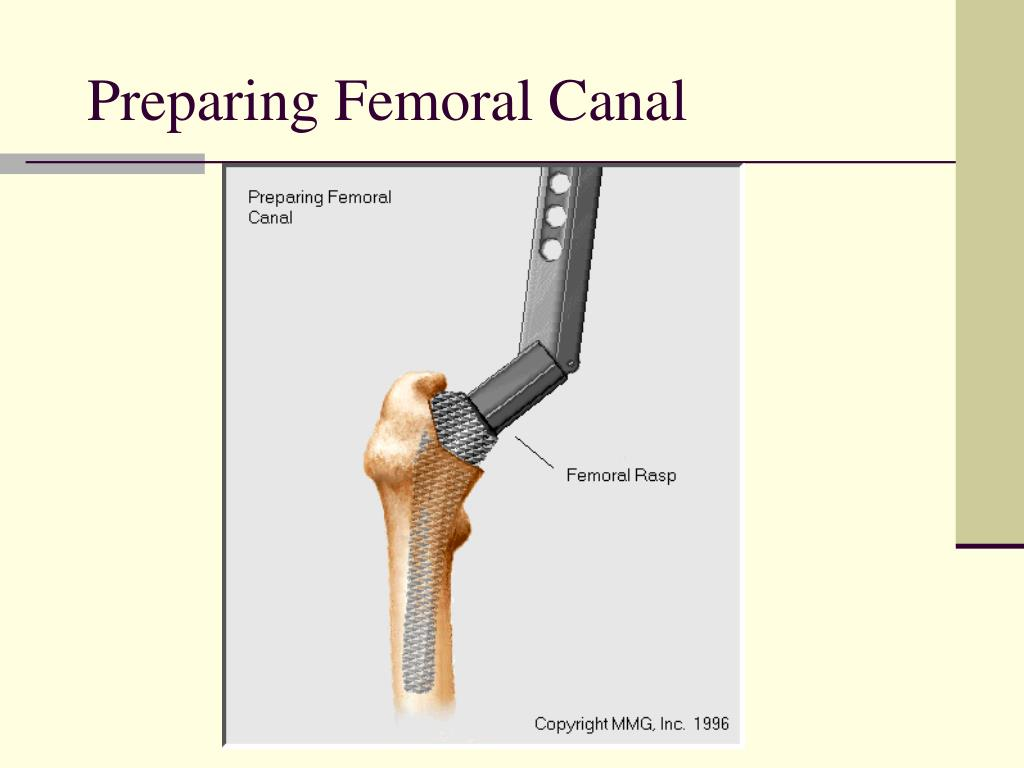 Preparing Femoral Canal