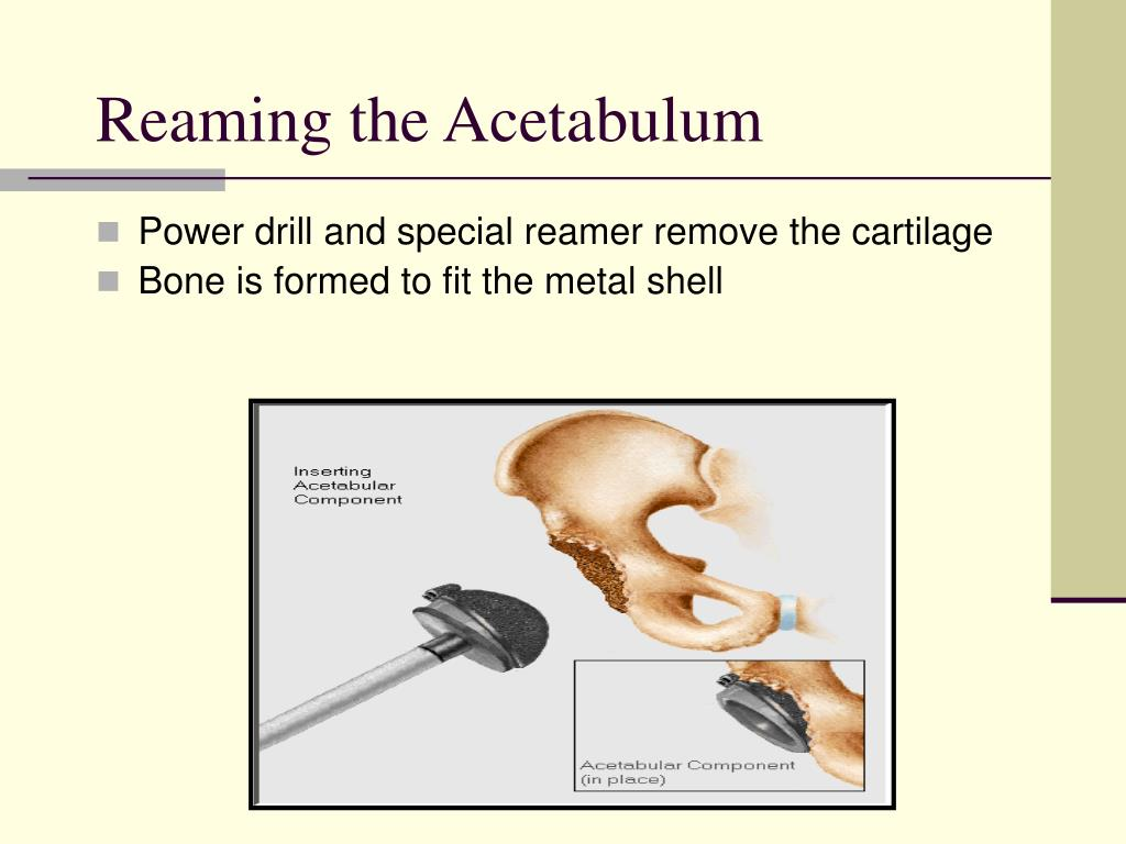 Reaming the Acetabulum
