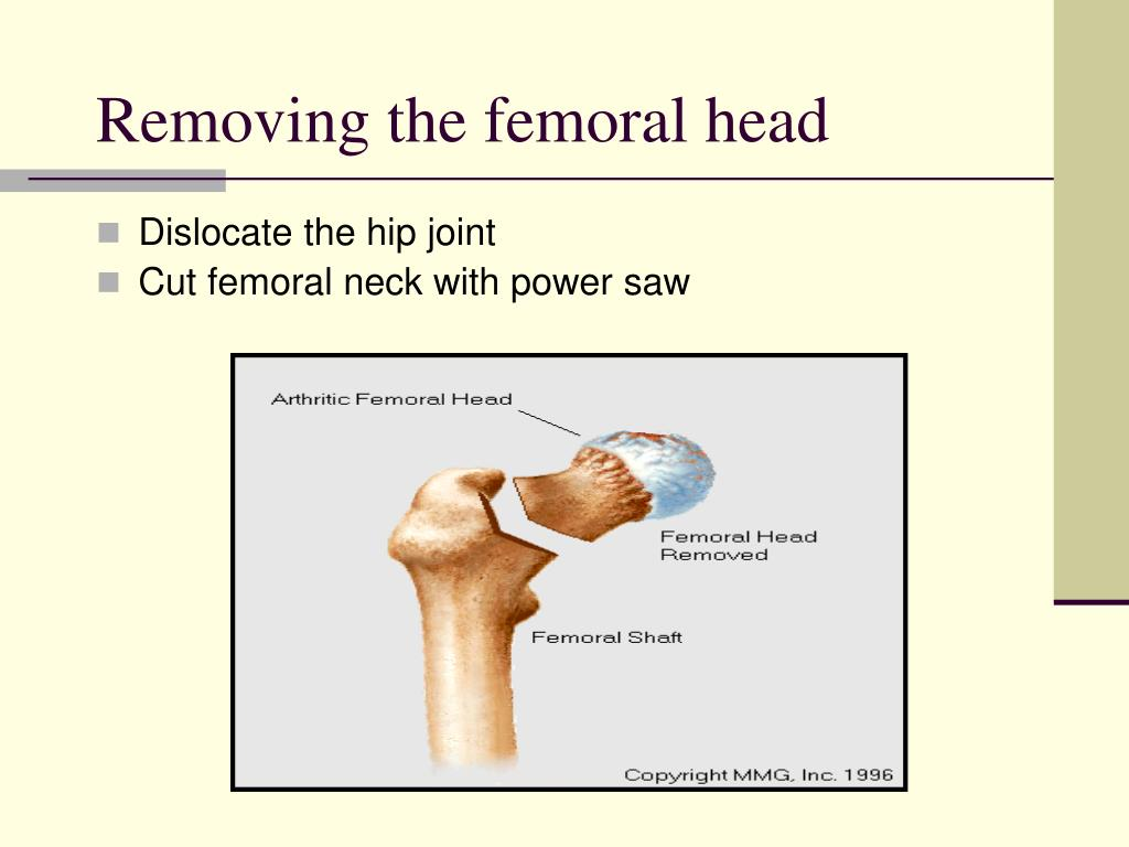 Removing the femoral head