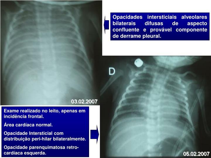 Opacidades intersticiais alveolares bilaterais difusas de aspecto confluente e provável componente de derrame pleural.