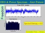 eeg power spectrum alert patient