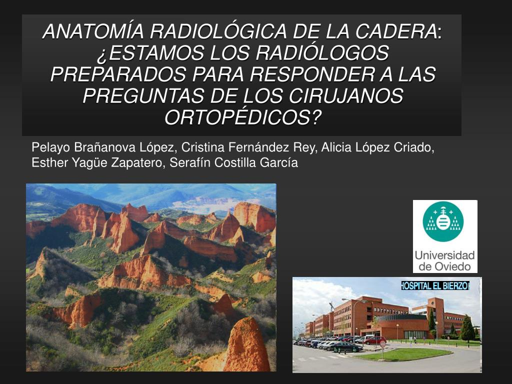 PPT - ANATOMÍA RADIOLÓGICA DE LA CADERA : ¿ESTAMOS LOS RADIÓLOGOS ...