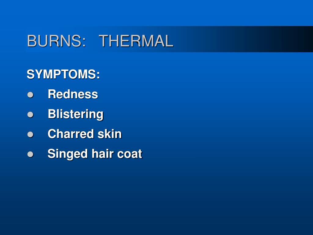BURNS:   THERMAL