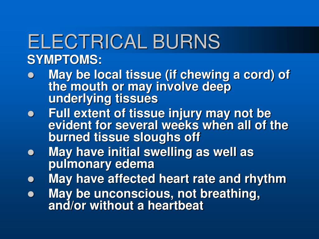 ELECTRICAL BURNS