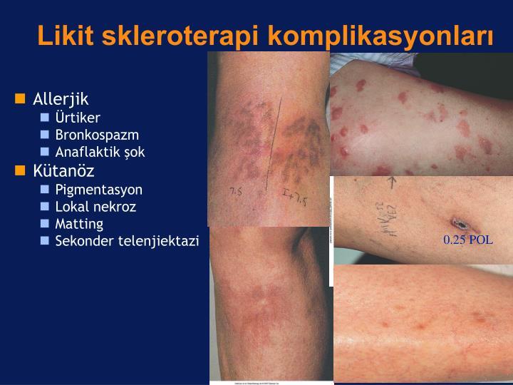 Likit skleroterapi komplikasyonları