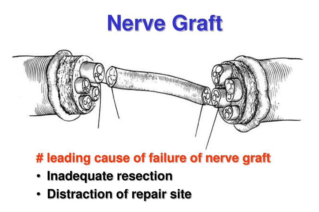 Nerve Graft