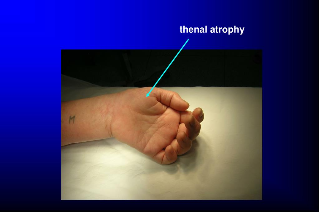 thenal atrophy