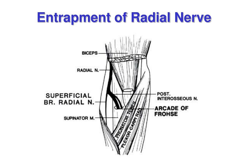 Entrapment of Radial Nerve