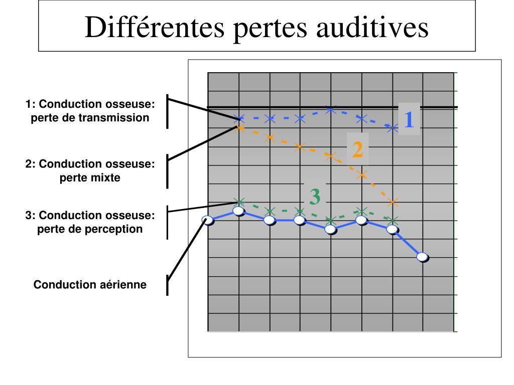 Différentes pertes auditives