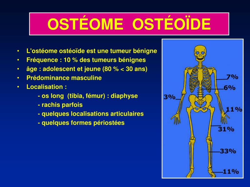 PPT - OSTÉOME OSTÉOÏDE PowerPoint Presentation - ID:423155