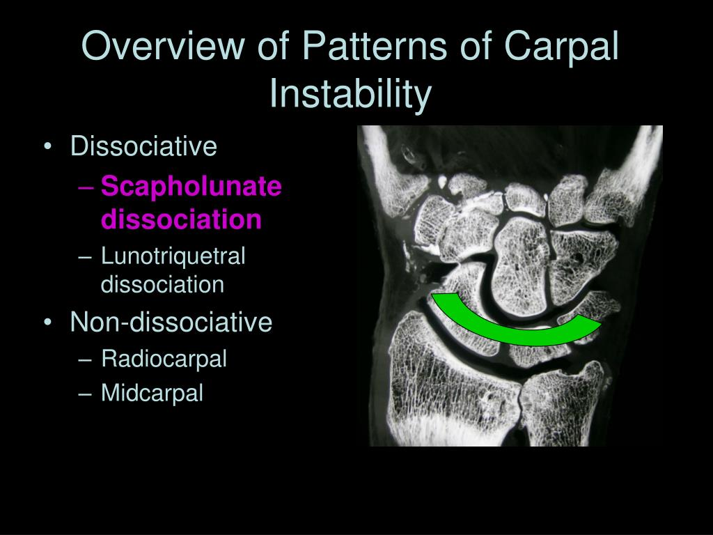 Overview of Patterns of Carpal Instability