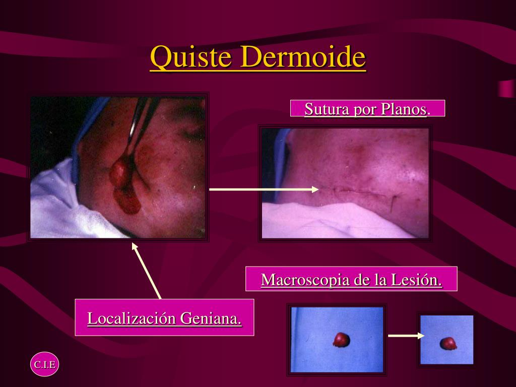 Dermoidi