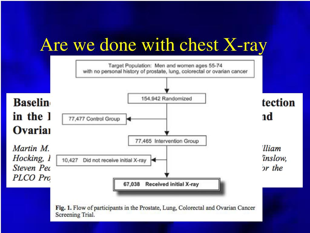 Are we done with chest X-ray