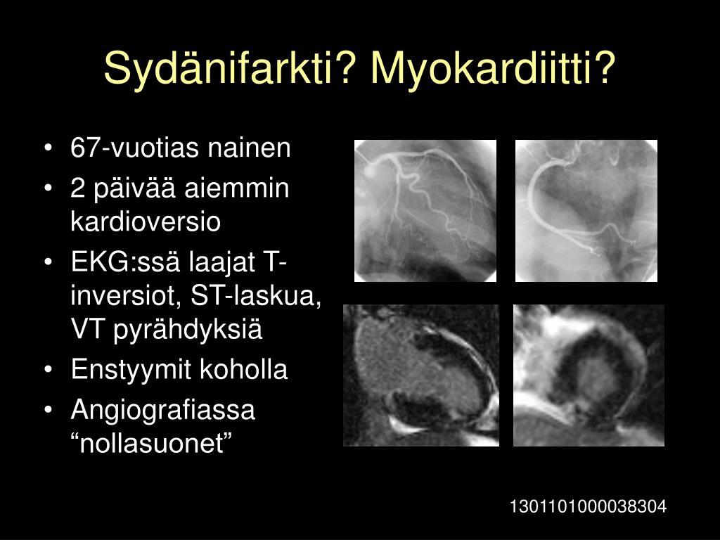Sydänifarkti? Myokardiitti?