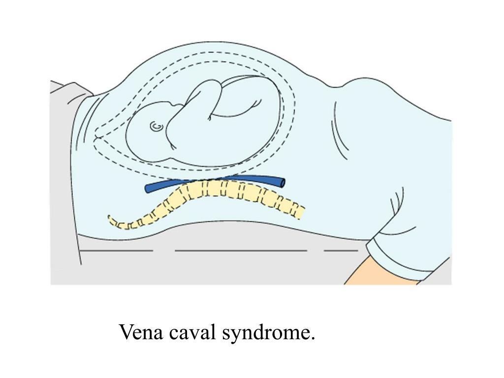 Vena caval syndrome.