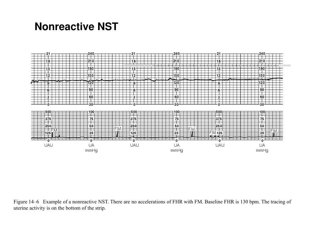 Nonreactive NST