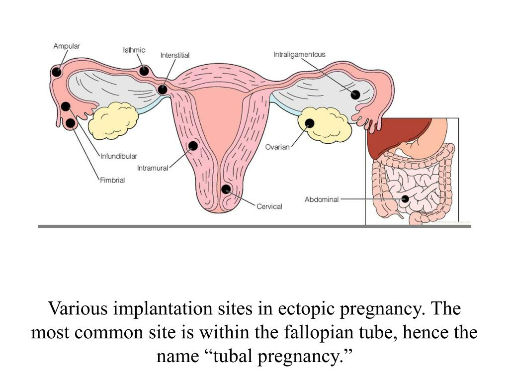 """Various implantation sites in ectopic pregnancy. The most common site is within the fallopian tube, hence the name """"tubal pregnancy."""""""