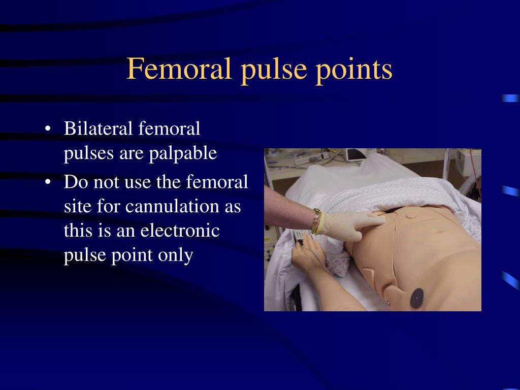 Femoral pulse points