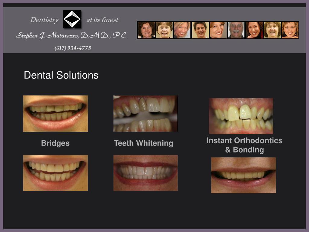 Instant Orthodontics & Bonding