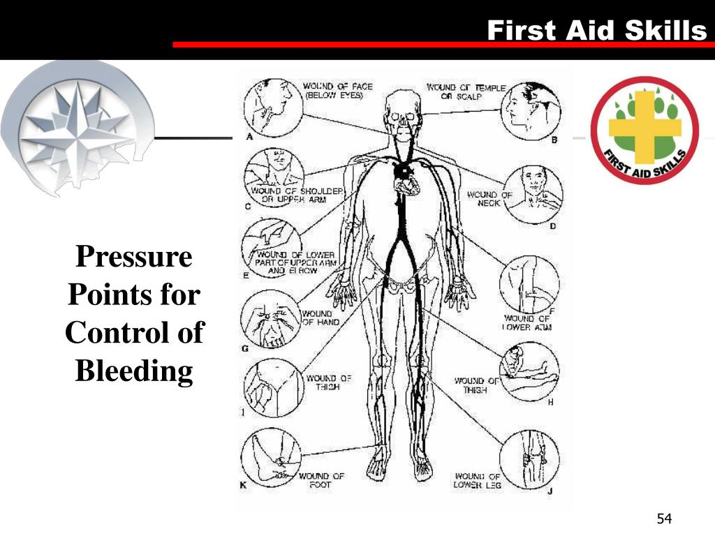 Pressure Points for Control of Bleeding