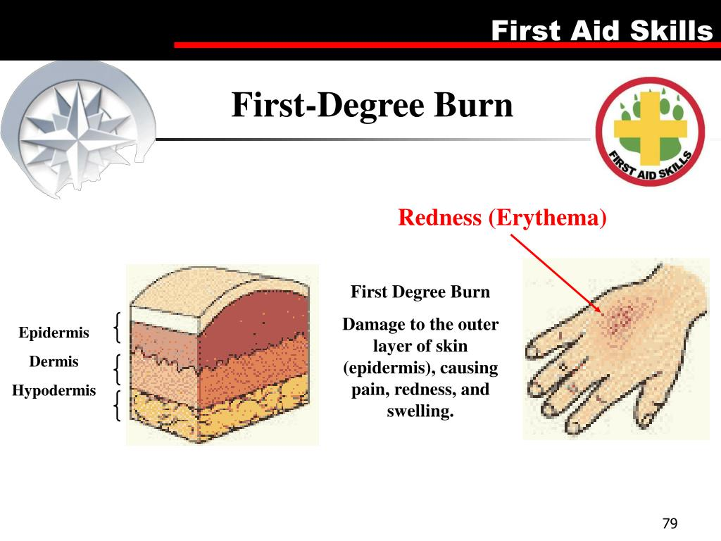 First-Degree Burn
