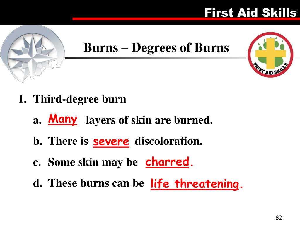 Burns – Degrees of Burns