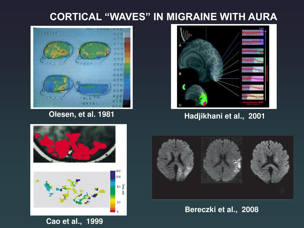 "CORTICAL ""WAVES"" IN MIGRAINE WITH AURA"
