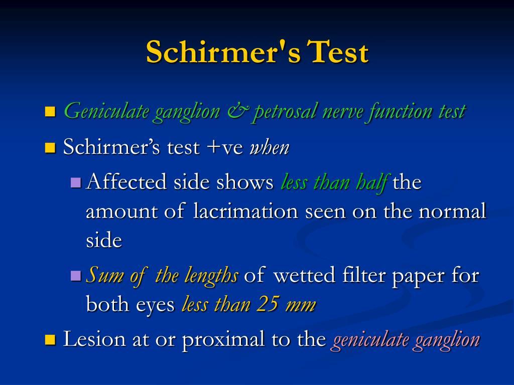 Schirmer's