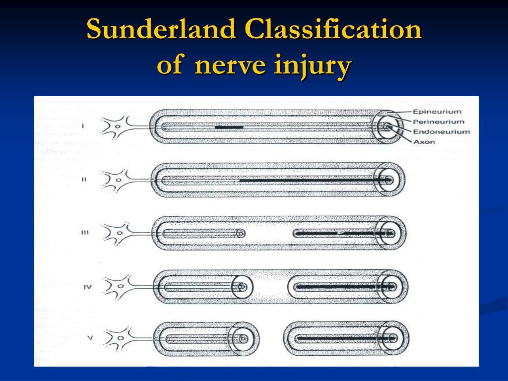 Sunderland Classification
