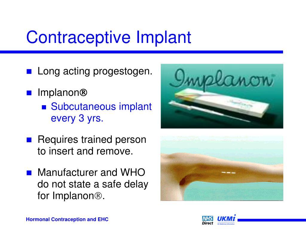 Contraceptive Implant