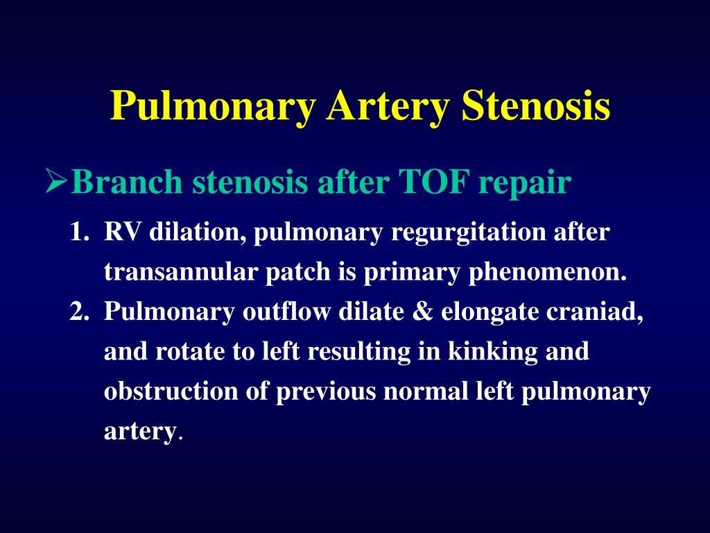 Pulmonary Artery Stenosis