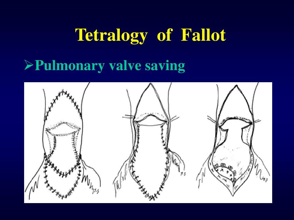 Pulmonary valve saving