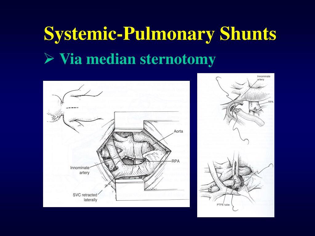 Systemic-Pulmonary Shunts