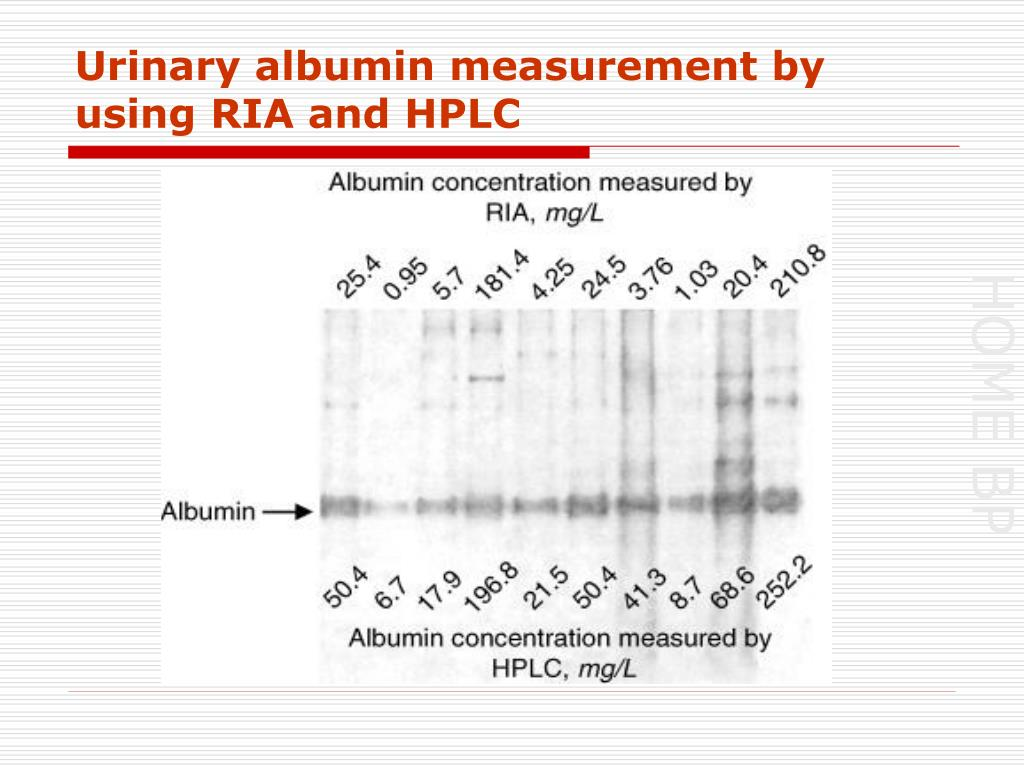Urinary albumin measurement by