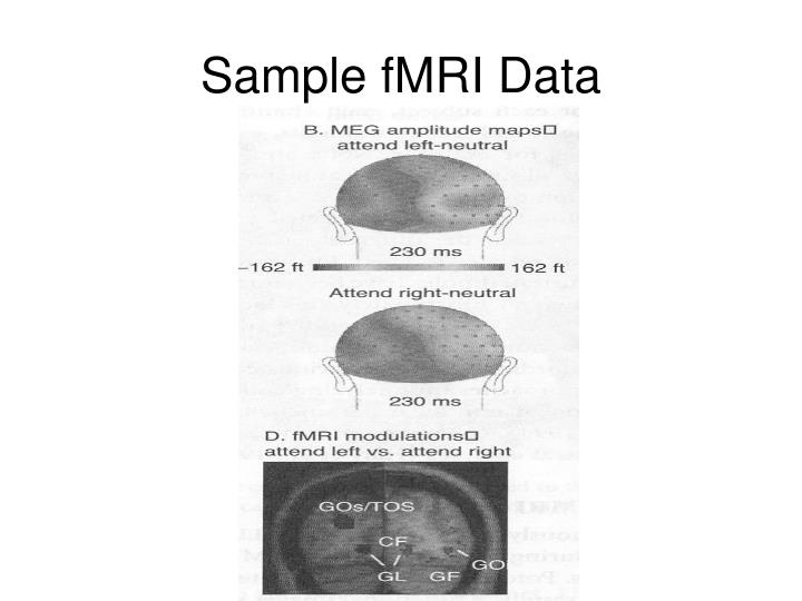 Sample fMRI Data
