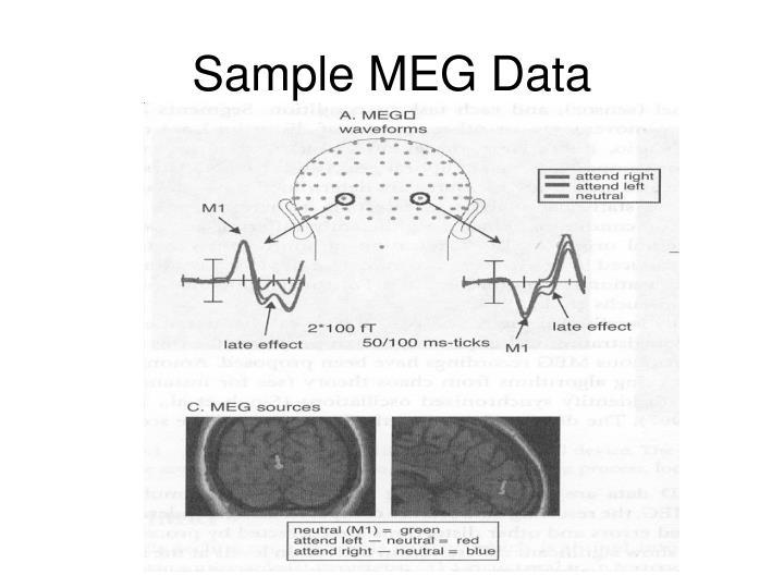 Sample MEG Data