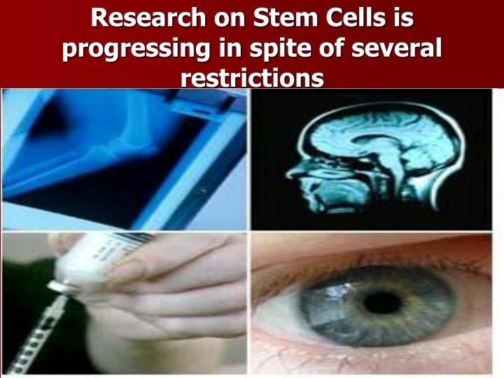 Research on Stem Cells is progressing in spite of several restrictions