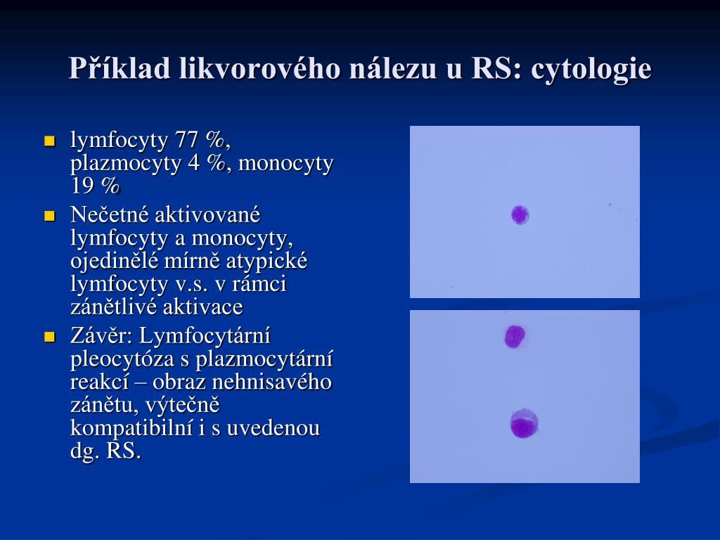 Příklad likvorového nálezu u RS: cytologie