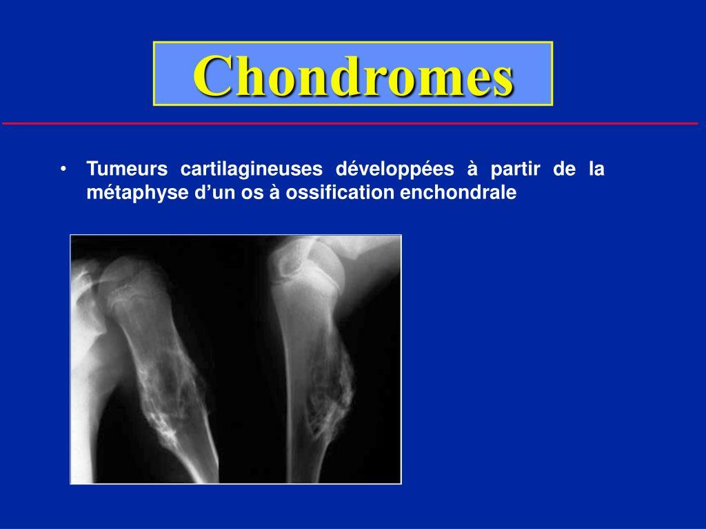 Chondromes