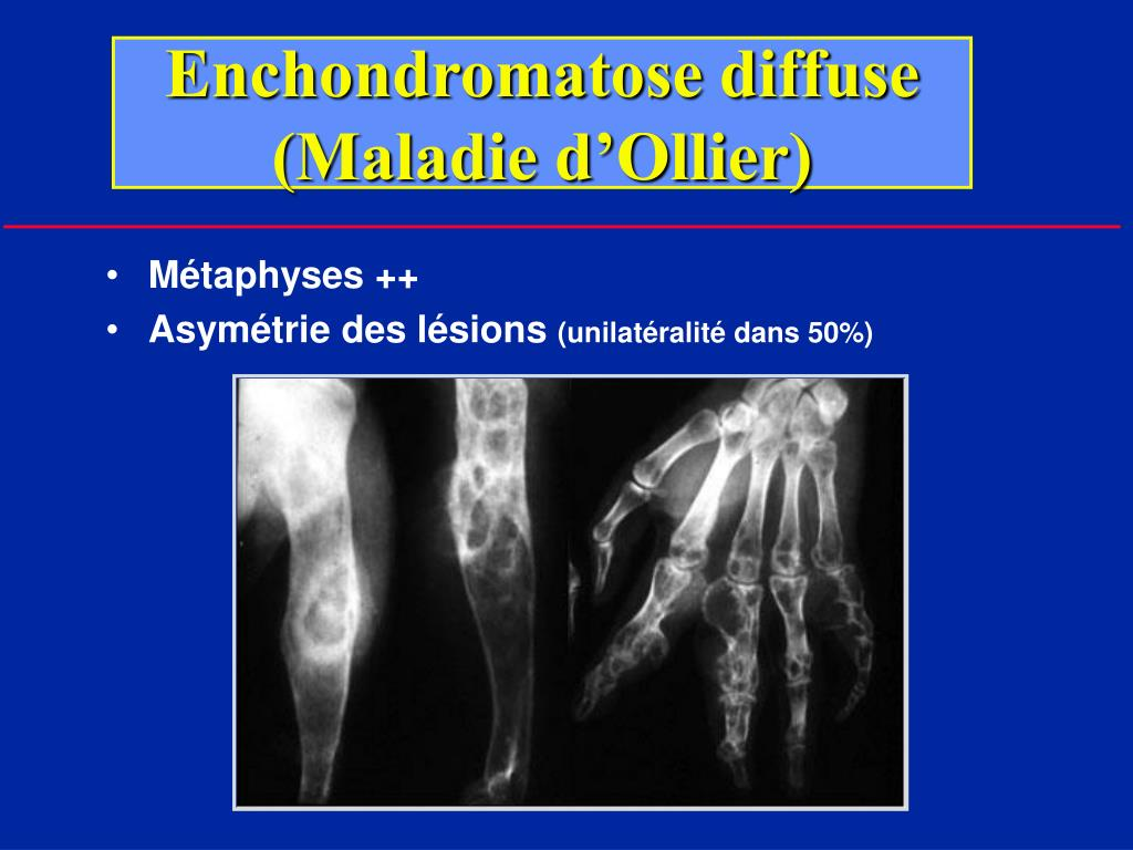 Enchondromatose diffuse