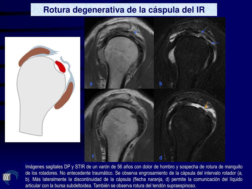Rotura degenerativa de la cáspula del IR