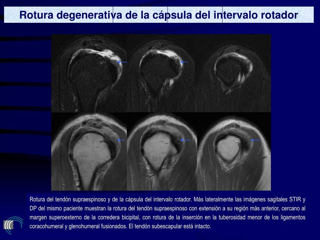 Rotura degenerativa de la cápsula del intervalo rotador