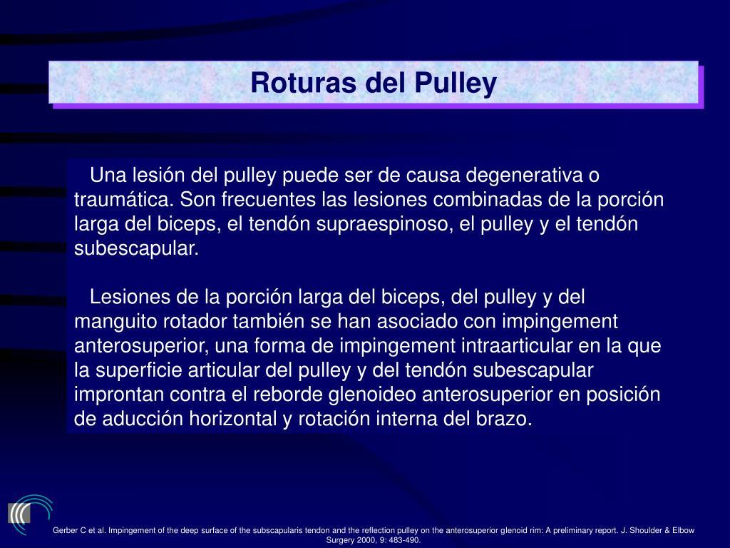 Roturas del Pulley