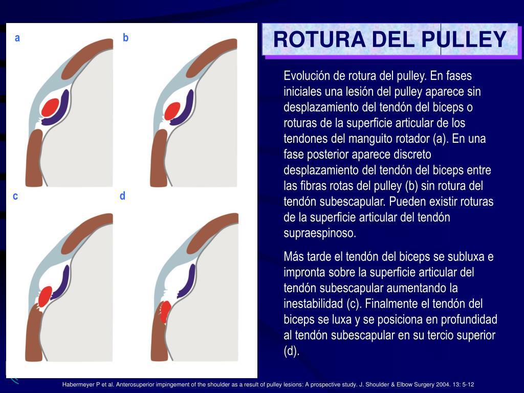 ROTURA DEL PULLEY
