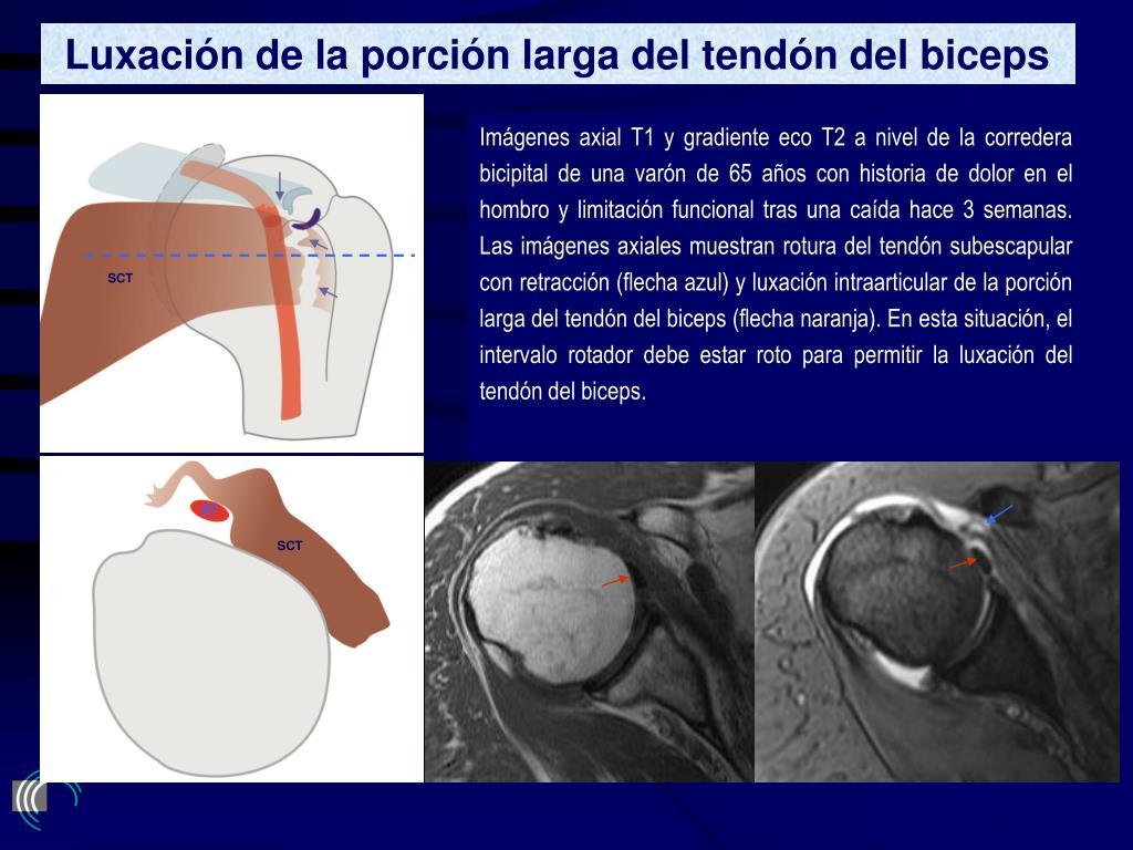 Luxación de la porción larga del tendón del biceps