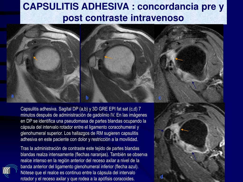 CAPSULITIS ADHESIVA : concordancia pre y post contraste intravenoso